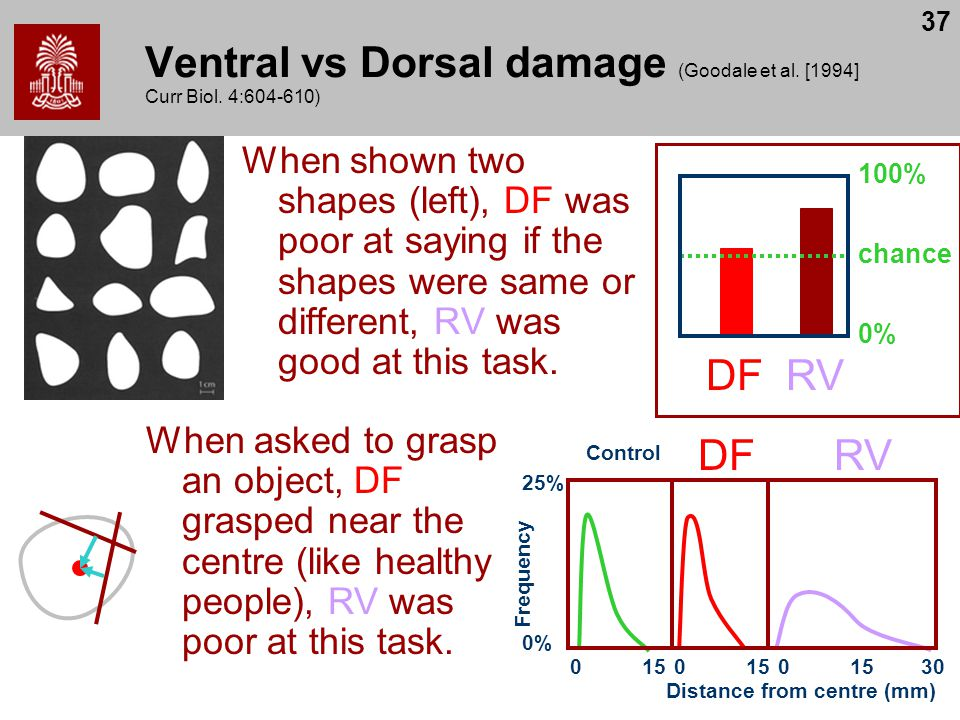 Ventral vs Dorsal damage (Goodale et al. [1994] Curr Biol. 4:604-610)